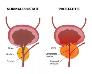 Image result for chronic prostatitis